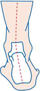 good foot store orthotics